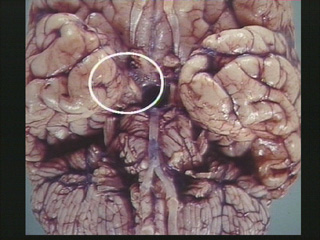 Herniation Effects of Space-Occupying Lesions (SOL)